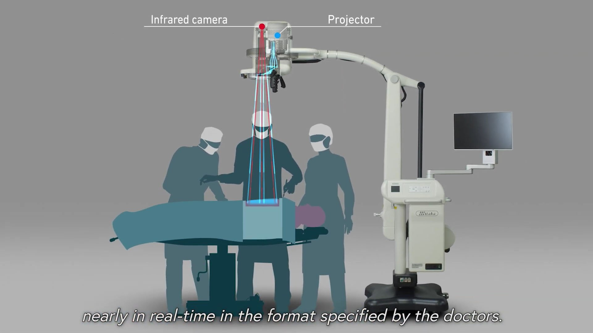 A screenshot from the video 'MIPS - Medical Imaging Projection System'