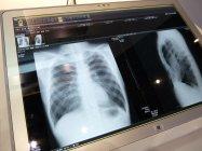医療業界には、電子カルテや医療用画像ビューワーとしての用途を提案